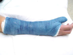 Thumb Spica Splint Or Cast Orthoped