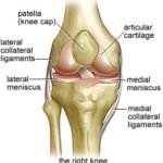 Broken Knee Injuries Symptoms, Diagnosis, and Treatment