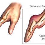 Dislocated Finger Joint Pictures and Treatment