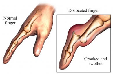 Dislocated Finger Symptoms