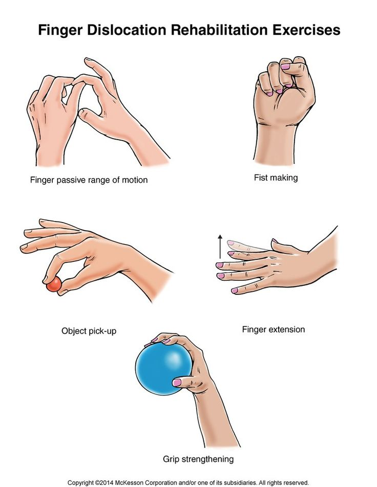 Finger Rehabilitation Exercises
