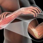 Joint, Tendon & Nerve Protection Suggestions