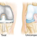 What is a total knee prosthesis